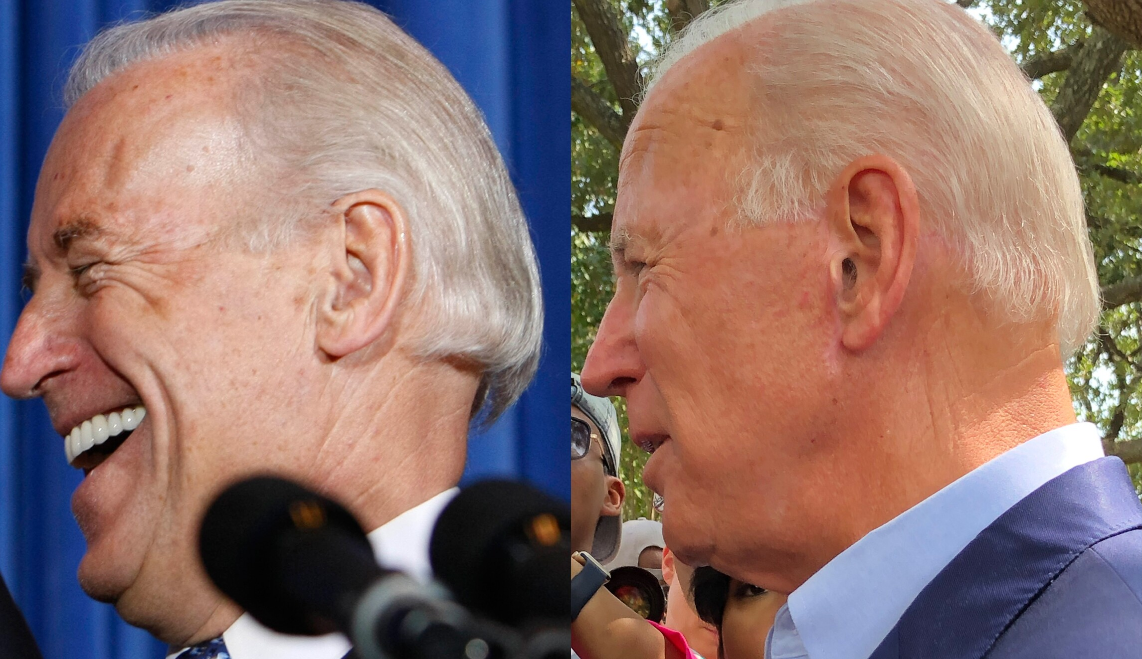 It's obvious': Cosmetic surgeons say Biden had facelift before 2020 campaign