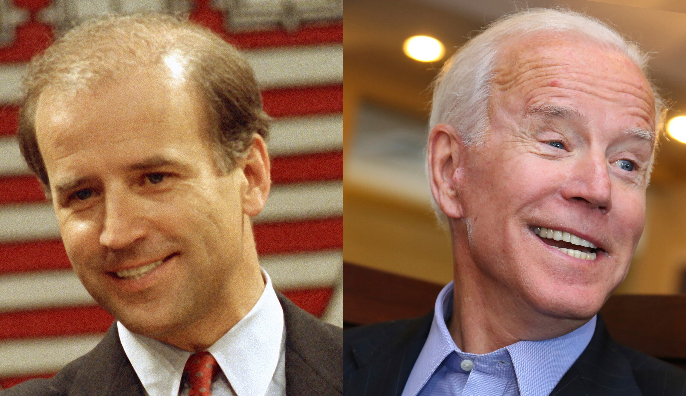 Botox, hair plugs, and veneers: Biden could escape the